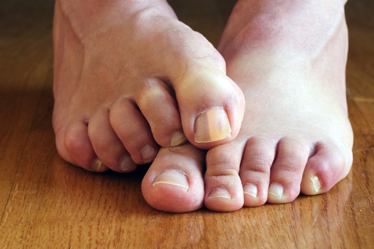 torontolasermedclinic bad nail