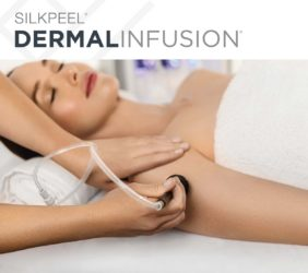Dermalinfusion-treatment